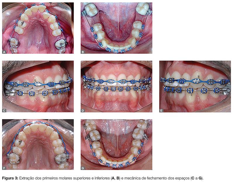 clinica_v12_n06_62fig03