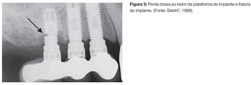 implant_v07_n04_90fig03