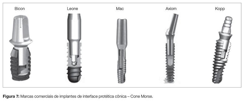 implant_v07_n04_90fig07
