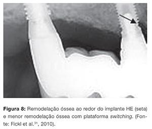 implant_v07_n04_90fig08