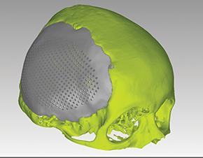 Cranio_imagem-protese