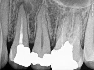 32-retratamento-endodontico-1424300037