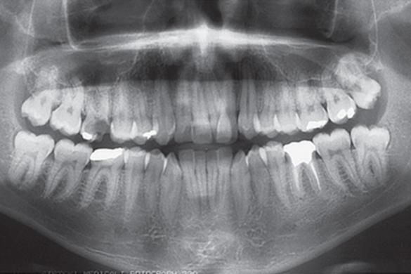 extração primeiro molar