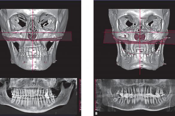 assimetria-mandibular-2