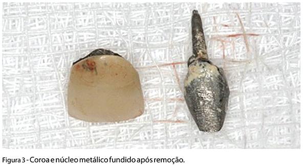 Caso_Clinico_fig03