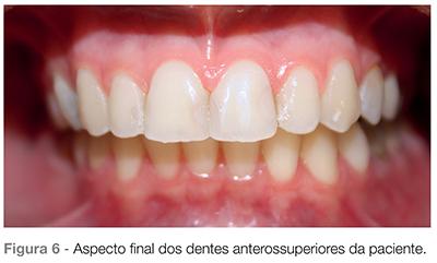 Dental Press Clareamento Dentario Em Paciente Com Restauracoes