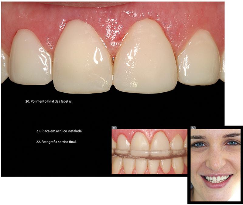 imagem_casos_clinico_11