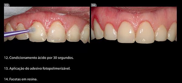 imagem_casos_clinico_Fig1314