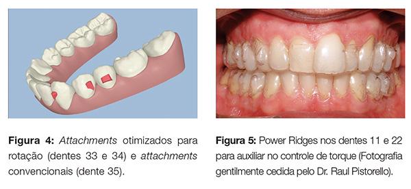 clinica_v12_n06_06fig04_5