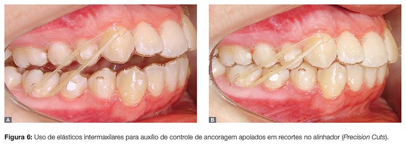 clinica_v12_n06_06fig06