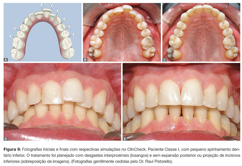 clinica_v12_n06_06fig09