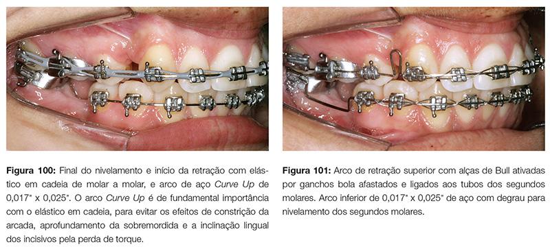 clinica_v12_n06_18fig100_101