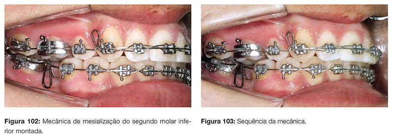 clinica_v12_n06_18fig102_103