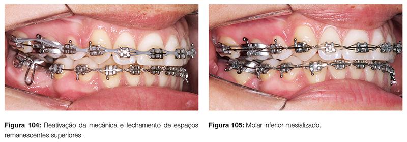 clinica_v12_n06_18fig104_105