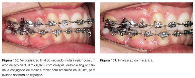 clinica_v12_n06_18fig106_107