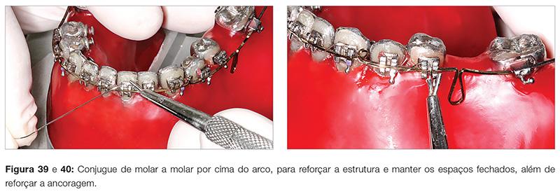 clinica_v12_n06_18fig39_40