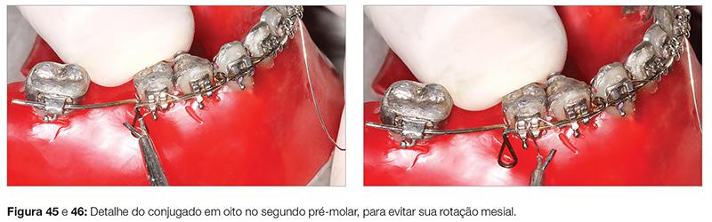 clinica_v12_n06_18fig45_46