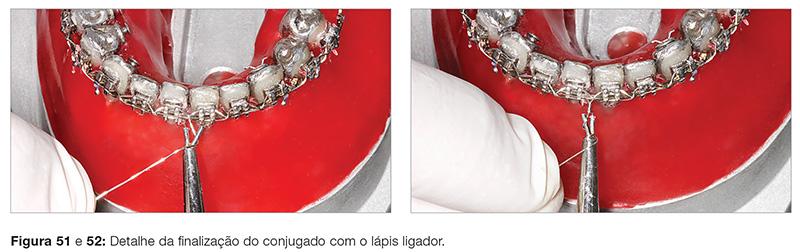 clinica_v12_n06_18fig51_52