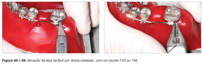 clinica_v12_n06_18fig58_59