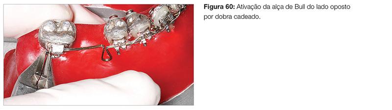 clinica_v12_n06_18fig60