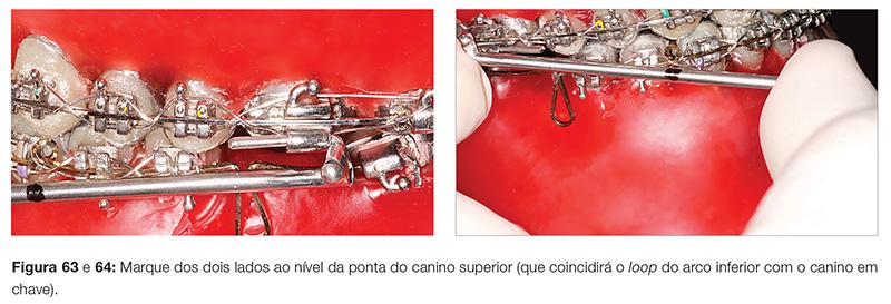 clinica_v12_n06_18fig63_64