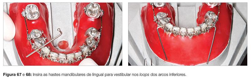 clinica_v12_n06_18fig67_68