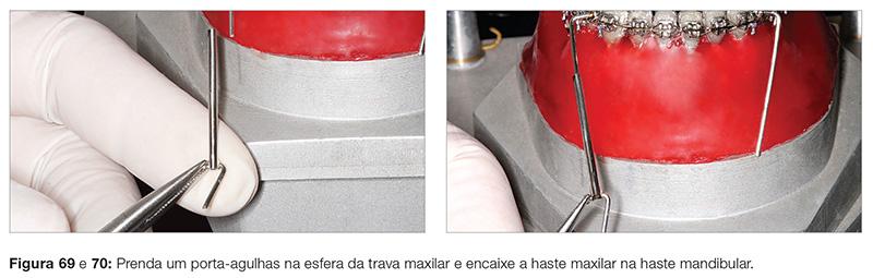 clinica_v12_n06_18fig69_70