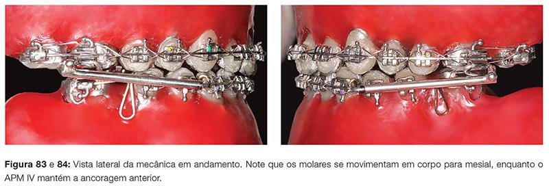 clinica_v12_n06_18fig83_84