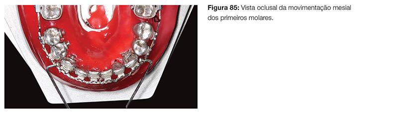 clinica_v12_n06_18fig85