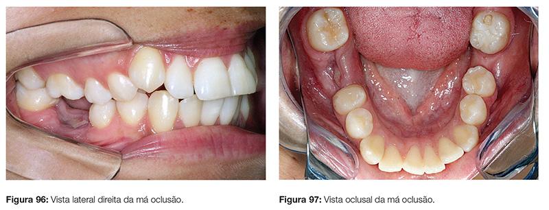 clinica_v12_n06_18fig96_97