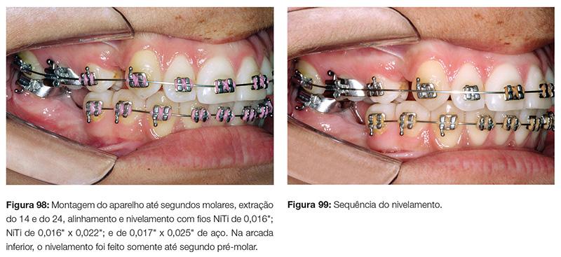 clinica_v12_n06_18fig98_99