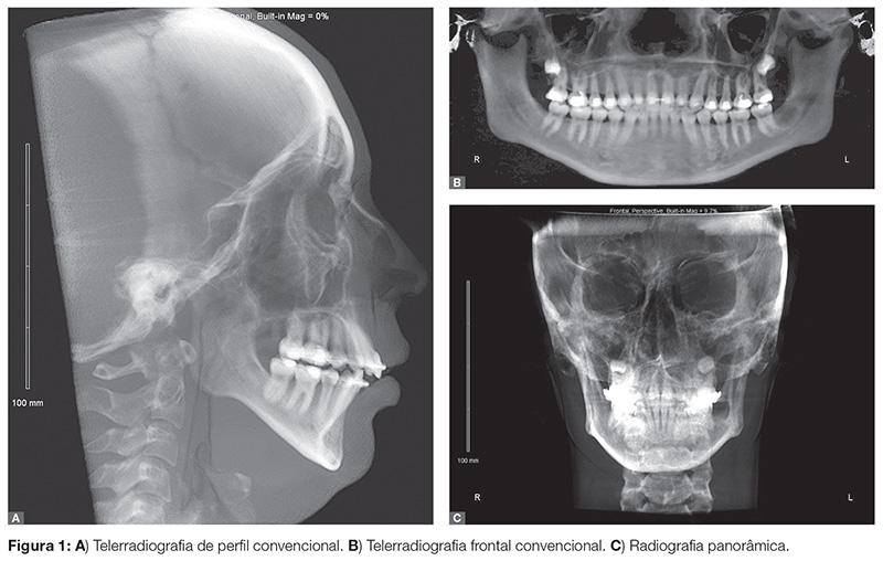 vantagens da tomografia