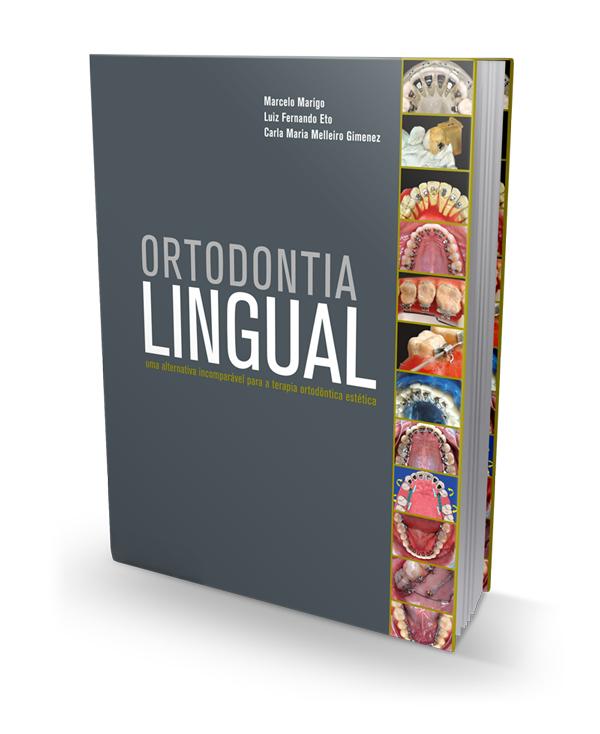 ortodontia-lingual-201210181507041