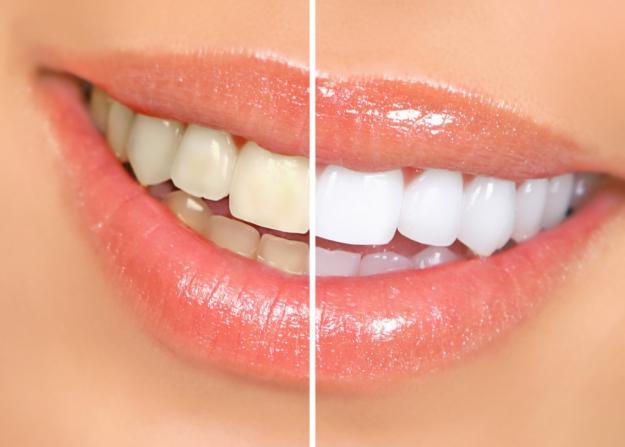 Dental Press O Portal De Conteudo De Odontologia Anvisa Proibe