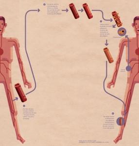 órgãos sob medida