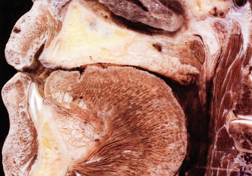 Peça anatômica destacando a delica- deza da tábua óssea vestibular na região dos in- cisivos inferiores (Foto: reprodução do artigo)