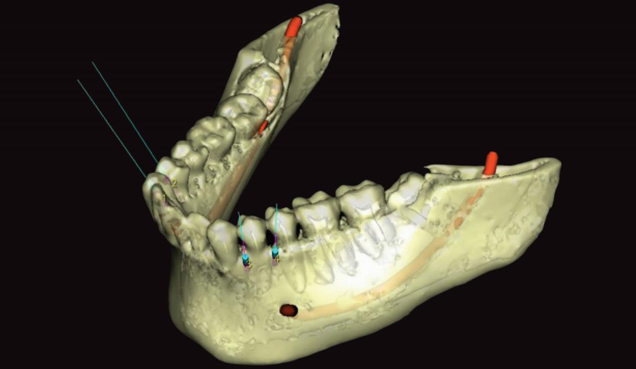 mini-implante