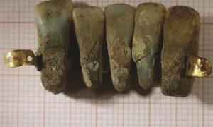 A prótese possui cinco dentes de pessoas diferentes presos por uma barra de ouro (Fonte: Divulgação)