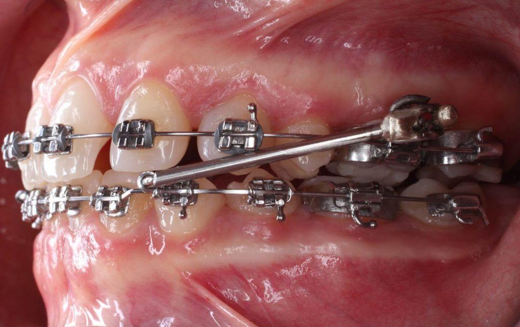 protração mandibular