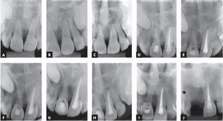 avulsão dentária