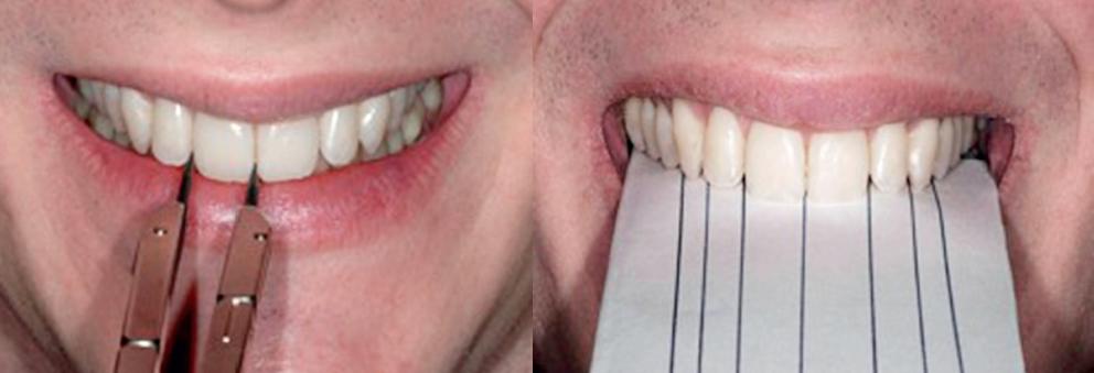 padroes periodontais 1