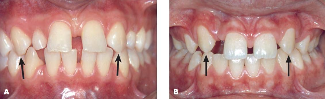 agenesia de todos los dentistas