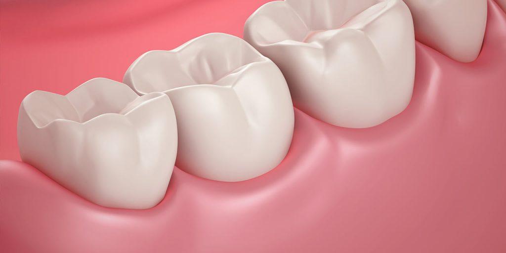 terceiro molar