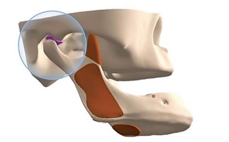 mentoneira ortopédica