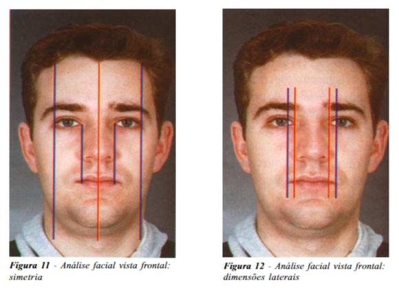 análise facial