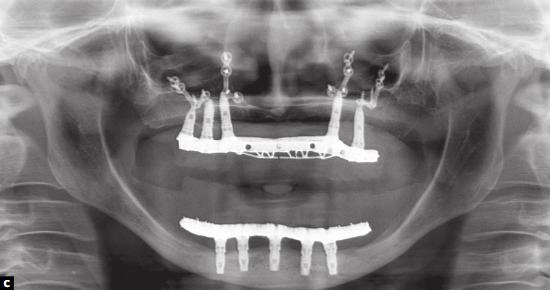 reabilitação implantossuportada